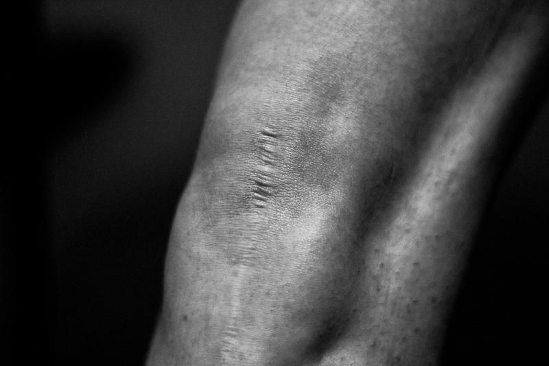 cicatrice-1